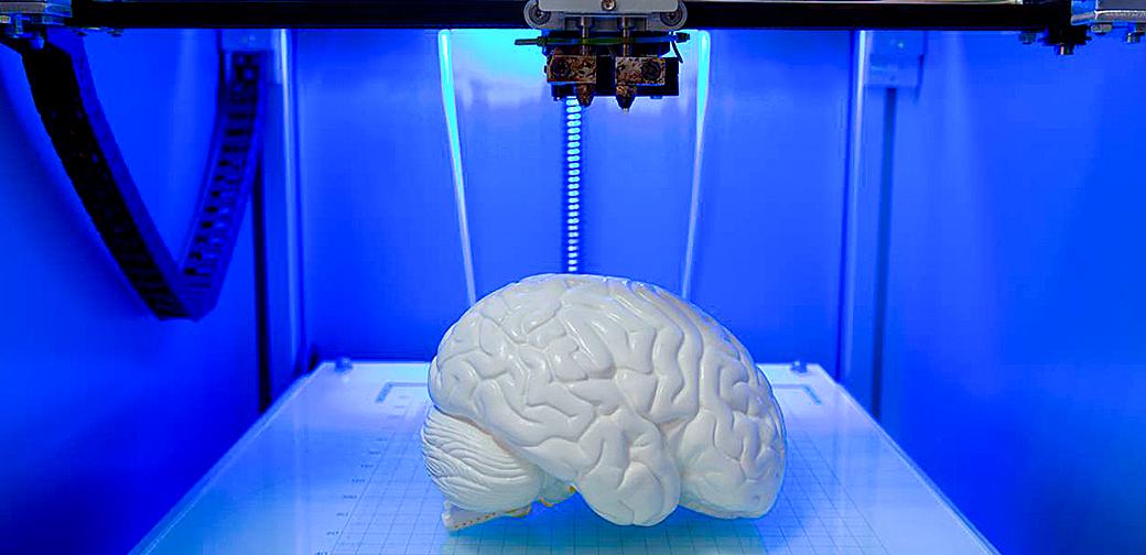 impressora-3d-cerebro-paciente